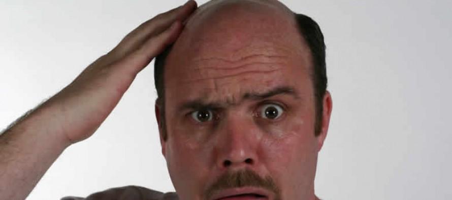Почему у мужчин выпадают волосы и как это лечить
