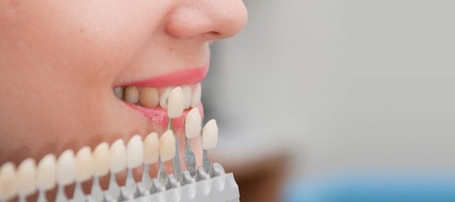 Обзор стоматологий по протезированию в Самаре