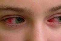 Конъюнктивит: виды, симптомы, лечение