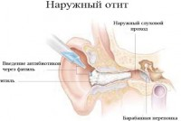 Методы профилактики и лечения отита