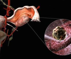 Ановуляторный цикл: причины, диагностика, лечение
