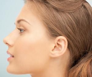 Ринопластика носа — эстетическая пластика носа