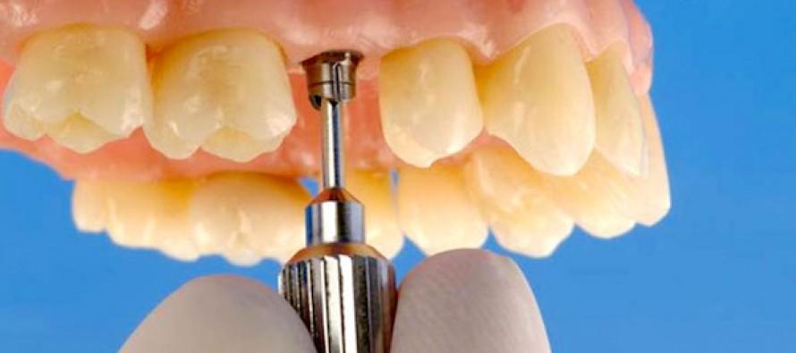 Современный способ протезирования: установка коронок на имплант