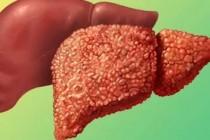 Лечение фиброза печени: описание, советы, рекомендации специалистов