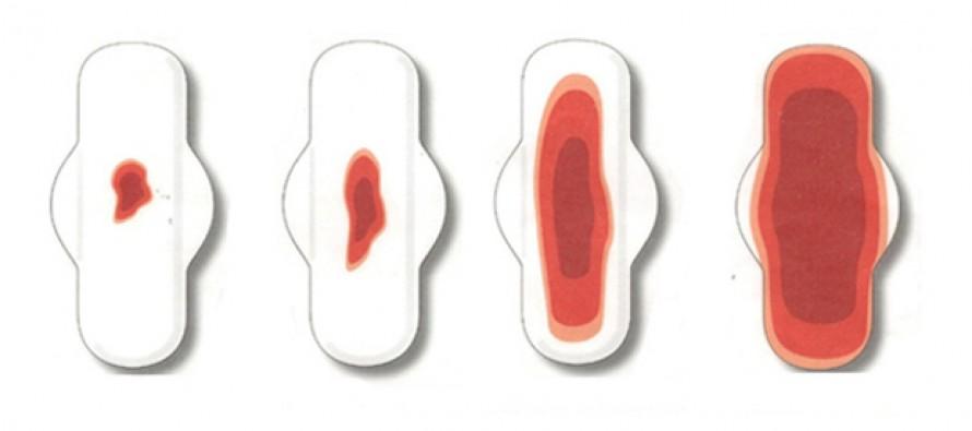 Обильные месячные — менометроррагия