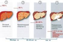 Лечение гепатита С и его основные сложности