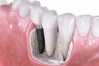 9 наиболее важных вопросов о зубных имплантатах