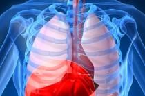 Симптомы и диагностика рака легких
