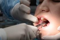 Причины и показания к удалению зубов