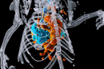 Создан первый цветной 3D-рентген