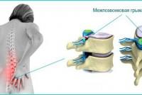 Межпозвоночная грыжа: причины, диагностика и лечение