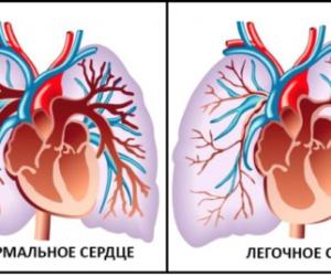Лёгочное сердце – патология сердца: что это и как лечить