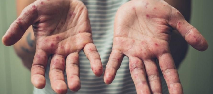 Украина стала мировым лидером по заболеванию корью в 2018 году