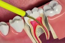 Болит зуб после удаления нерва – какие меры стоит предпринять?