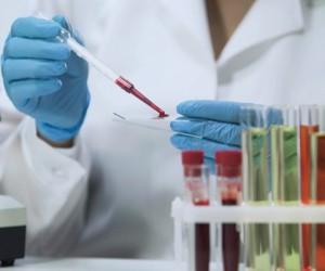 В России стартует акция по анонимному обследованию на ВИЧ