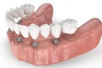 Преимущества и недостатки имплантации зубов