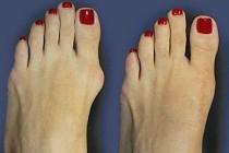 Косточка на ногах: лечение и профилактика