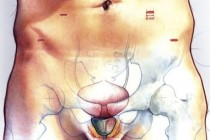 Симптомы рака простаты, лечение, прогноз
