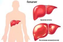 Гепатит С – признаки болезни и пути заражения