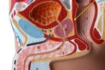 Воспаление предстательной железы
