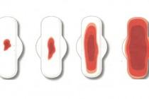 Обильные месячные – менометроррагия