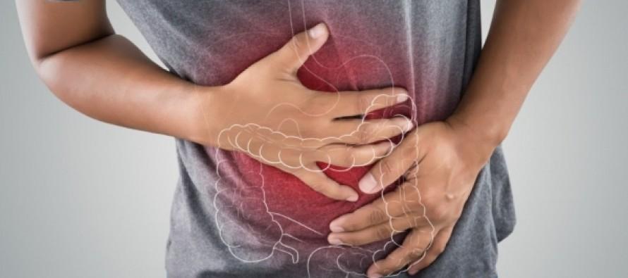 Ученые назвали фактор, влияющий на появление рака кишечника