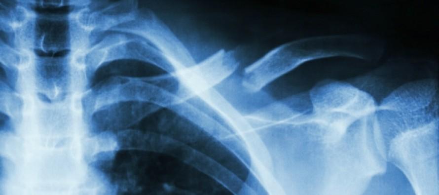 Специалисты разработали новый метод лечения редких переломов