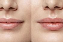 Увеличение губ: как ухаживать за увеличенными губами?