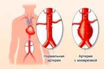 Аневризма брюшной аорты: симптомы и виды заболевания