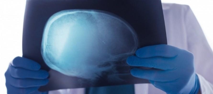 """У женщины с """"раком мозга"""" внезапно обнаружили другую болезнь"""