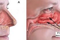 Ринит. Разновидности, патогенез и клиническая картина заболевания