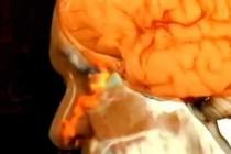 Утечка цереброспинальной жидкости — симптомы и лечение