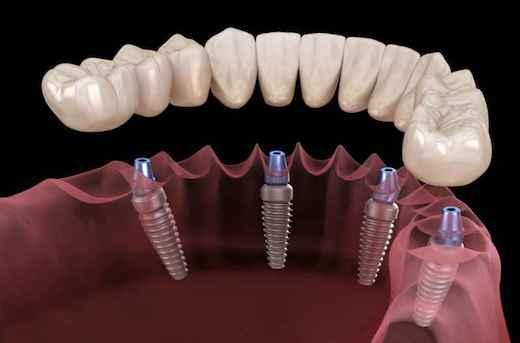 протезирование зубов в Люберцах
