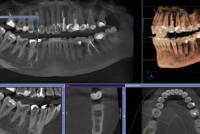 Компьютерная 3D томография зубов: особенности процедуры